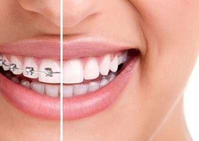 braces-or-invisalign