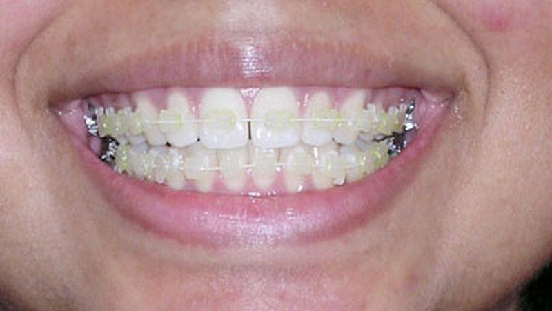 ortodoncia brakets ceramicos