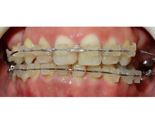 paciente_ortodoncia_1