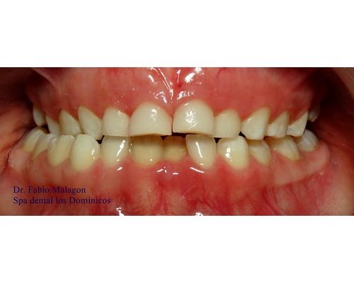 paciente_ortodoncia_5