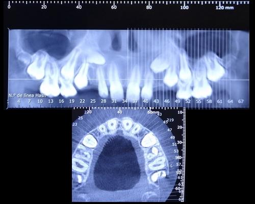 paciente_ortodoncia__4
