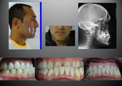 ortodoncia con cirugia 1