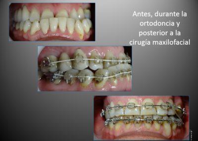 ortodoncia con cirugia 2