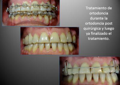 ortodoncia con cirugia 3