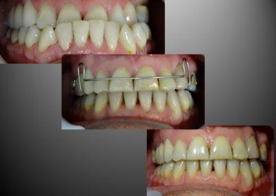 ortodoncia con cirugia 4