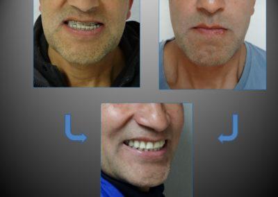 ortodoncia con cirugia 5