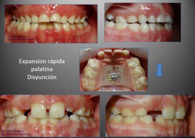 tratamiento con expansion rapida palatina con disyuntor 1